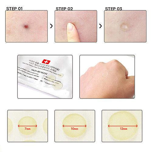 Dolly Skin Cosrx Acne Pimple Master Patch
